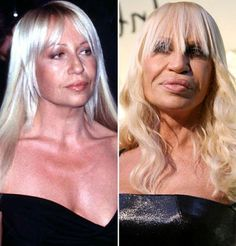Celebrity Plastic Surgery | Celebrity-plastic-surgery-faces-before-after7