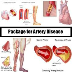 Natural Remedy Package for Artery Disease  Suffering from Artery Disease, Looking the natural treatment...  More information visit here..  http://home-remedies-world.com/coronary-artery-disease-package.html  #Artery_Disease