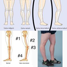 Fixing Hyperextended Knee Posture #physicaltherapy ...