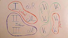 Best 12 lead EKG interpretation video cheat sheet video ever created. Master 12 lead ECG in 6 minutes made easy. Step-by-step guide Nursing School Humor, Nurse Humor, Rn Nurse, Funny Nursing, Medical Humor, Nurse Life, Medical School, Nursing Tips, Nursing Notes