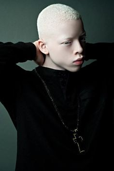 RobenX, 13 y/o rapper with albinism by Robdarius Brown. You Are Beautiful, Black Is Beautiful, Beautiful People, Albino Men, Modelo Albino, Vitiligo Model, Unique Faces, Face Reference, African Beauty