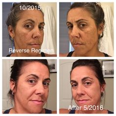 """Alicia LaCroix Bainbridge is thrilled with her fabulous results!  Here is what she shared: """"I started using Reverse Regimen October of 2015 because I saw so many great before and afters. I had already tried everything for my melasma and sun spots with no results!""""  Contact me and give our Reverse regimen a try! #nothingchangesifnothingchanges"""