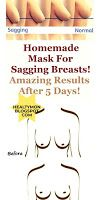 Age, excess weight loss and exercise to tighten the chest for reasons such as the breasts begin to sag again may not be sufficient. Homemade Eye Cream, Homemade Mask, Natural Remedies For Arthritis, Natural Health Remedies, Unhealthy Diet, Healthy Detox, Health Center, Health And Beauty Tips, Face And Body