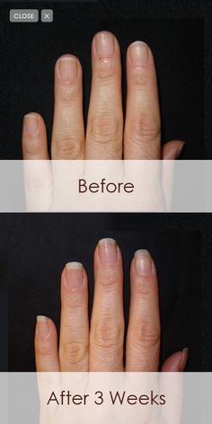 Perfect Formula Before and After: Longer, stronger, more beautiful nails.