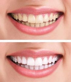 "Statt Zahnpasta: Dieses Hausmittel macht eure Zähne weißer This home remedy makes your teeth more white – ""White teeth without expensive beauty products: You can easily make this woman yourself! Home Teeth Whitening Kit, Teeth Whitening Remedies, Natural Teeth Whitening, Instant Teeth Whitening, Teeth Whitening Diy, Beauty Care, Diy Beauty, Beauty Hacks, Beauty Skin"