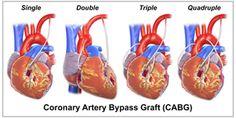 Coronary Artery Bypass Surgery-Read the facts