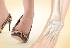 Slideshow: The Worst Shoes for Your Feet