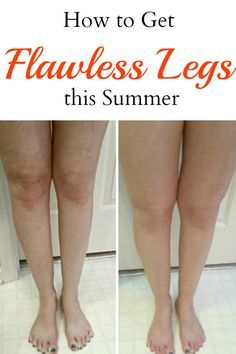 Embarrassed about the way your legs look? Don't be! Use this technique to get flawless legs this summer!