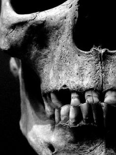 human skull. teeth. bone, jaw