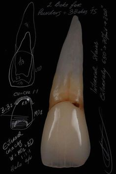 Dental Hygiene School, Dental Hygienist, Dental Implants, Dental Anatomy, Medical Anatomy, Dental Logo, Dental Art, Dental Wallpaper, We All Mad Here