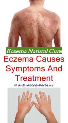 Skin Eczema Treatment Eczema Allergic Reaction