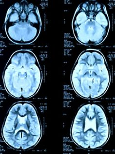 A study using high-resolution functional magnetic resonance imaging (fMRI) shows that for people with depression, the region of the brain that helps us manage expectations of bad experiences reacts in an opposite manner than what occurs in healthy adults. The University College of London study found that activity in the habenula, a pea-sized region of the brain, functions abnormally in depressed individuals. The finding was a follow-up to the discovery that the habenula was activated in…