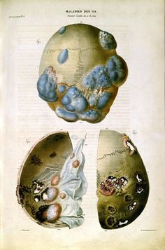 Tumors of the cranium; French 19th century educational plate.