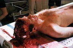 John F. Kennedy autopsy photo (#4)                                                                                                                                                                                 Más