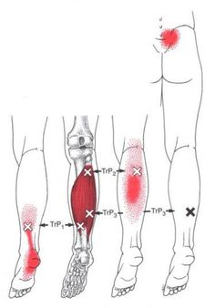 Soleus trigger point diagram, pain patterns and related medical symptoms. The myofascial pain pattern has pain locations that are displayed in red and associated trigger points shown as Xs. Massage Tips, Massage Techniques, Massage Therapy, Acupuncture Benefits, Massage Benefits, Dry Needling Therapy, Soleus Muscle, Medical Symptoms, Referred Pain