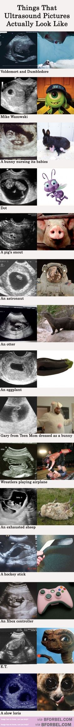 15 Ultrasounds And What They Really Look Like…