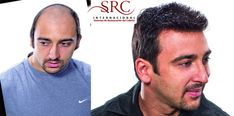SRC Cancun Hair restoration, having a full head of hair is possible.