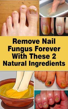 Natural Health Remedies, Herbal Remedies, Toe Fungus Remedies, Foot Remedies, Wellness Tips, Health And Wellness, Health Care, Health Fitness, Women's Health