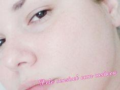 Sensitive Skin, Alchemy