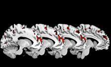 Psycopathy Linked to Brain Abnormalities
