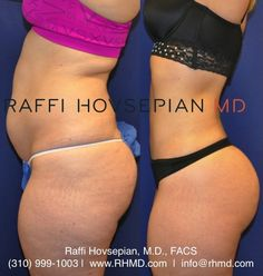 Amazing before and after body transformation by Dr. Raffi Hovsepian who underwent Dr. Hovsepian's advanced liposculpture technique, Shrink Wrap Liposuction, and Brazilian Buttock Augmentation (Butt Lift). For more information visit www.RHMD.com | (310) 999-1003  ___________________________ BBL Pillow is a must after a brazilian butt lift surgery Visit our site at www.bblpillow.com or at Amazon.com __________________ #miamiplasticsurgery #brazilianbuttlift #bbl #pillow #bblpillow  #surgery