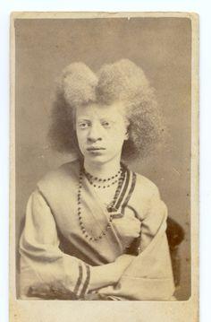 Albino Girl