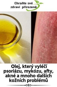 Olej, který vyléčí psoriázu, mykózu, afty, akné a mnoho dalších kožních problémů Tea Tree Oil, Aloe Vera, Health Fitness, Tee Tree Oil, Health And Fitness, Fitness