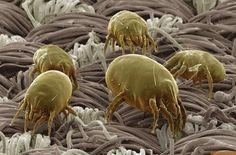 除菌スプレーは猛毒?「カビ・ダニ」を急速で死滅させる「天然スプレー」とは?   国際医療 Specialist Moe!