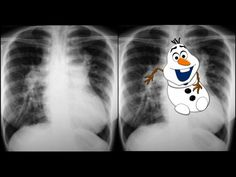 Snowman sign refers to the configuration of the heart and its superior borders resembling a snowman. This is seen in total anomalous pulmonary venous return.  The paratracheal shadow on the right is the prominent SVC and on the left is the vertical vein. The innominate vessel lies in the midline above base of heart. These three prominent vessels together form the head of the 'snowman'. The body is formed by the rest of the heart.  http://radiopaedia.org/articles/snowman-sign-total-anomalous-