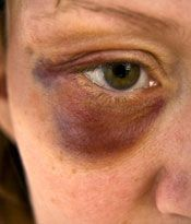 Very defined black eye bruising with all of the colors.  Really shows the blending between them.