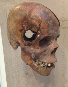 "tjwock: "" museum-of-artifacts: "" Skull from Civil War. Fatal wound inflicted by exploding 12 pound artillery shell "" Sigh. This is still from a display at the National Museum of Health and Medicine in. Nagasaki, Hiroshima, Fukushima, Foo Fighters, Vietnam, America Civil War, Civil War Photos, National Museum, World History"