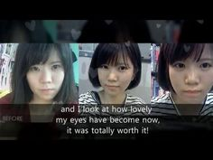 Eyelid Surgery Wonjin, Plastic Surgery in South Korea