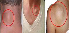cm si 1 cm. Acopera zona de aplicatie cu un bandaj pentru a evita patarea sau lipirea preparatului de haine. Tratamentul naturist pentru noduli subcutanati trebuie mentinut pe piele cam o zi si jumatate (36 de ore), dupa care se indeparteaza si se aplica un tratament nou. O terapie completa presupune 5 aplicatii sau o …