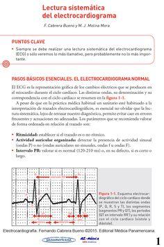 Lectura Sistemática del Electrocardiograma  #ECG #Electrocardiograma #Cardiologia #MedicinaClinica #AZMedica
