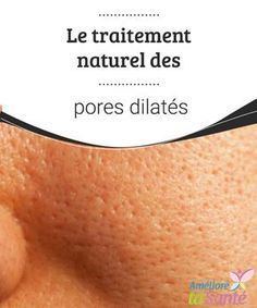 Pores dilatés : causes et traitements - Hair Beauty Beauty Care, Diy Beauty, Beauty Hacks, Crema Facial Natural, Dilated Pores, Cellulite Remedies, How To Grow Eyebrows, Get Rid Of Blackheads, Beauty Tips For Hair