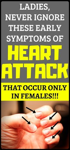 It's highly unlikely that you don't anyone that has either suffered heart attack, or died from complications of heart disease. Heart disease afflicts nearly million people world-wide, according to the World Health Organization. Heart Attack Symptoms, Heart Symptoms, Beauty Games, Stomach Ulcers, Coconut Health Benefits, Heart Health, Way Of Life, Heart Disease, Healthy Tips