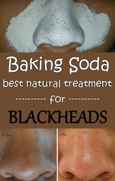 Baking soda - Best natural treatment for blackheads - BeautyTipsZone.com