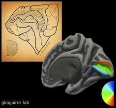 Nearly 100 years after a British neurologist first mapped the blind spots caused by missile wounds to the brains of soldiers, Perelman School of Medicine researchers at the University of Pennsylvania have perfected his map using modern-day technology. Their results create a map of vision in the brain based upon an individual's brain structure, even for people who cannot see.