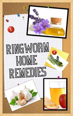 Best Ringworm Home Remedies