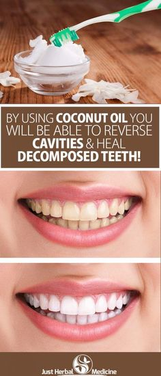 By Using Coconut Oil You Will Be Able To Reverse Cavities And Heal Decomposed Teeth!