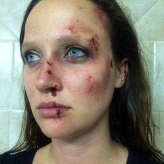 Bruises & cuts—beat up Bruises Makeup, Wound Makeup, Blood Makeup, Sfx Makeup, Prom Makeup, Costume Makeup, Face Makeup, Cuts And Bruises, Blood Art