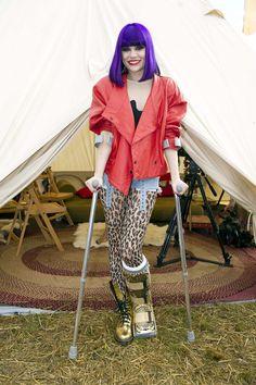 25 Best Leg cast images   Fotky marilyn monroe, Alberta ...