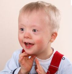 Speech Control In Children With Down Syndrome- Pinned by @PediaStaff – Please visit http://ht.ly/63sNt for all (hundreds of) our pediatric therapy pins