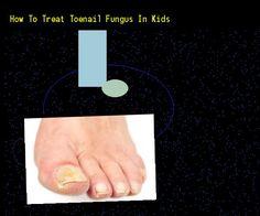How To Treat Toenail Fungus In Kids