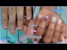 COMO HACER UÑAS ACRÍLICAS EN UÑAS MORDIDAS (ONICOFAGIA) - YouTube Nails, Youtube, Beauty, How To Make, Bitten Nails, Nailed It, Finger Nails, Ongles, Nail