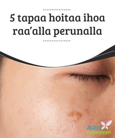 5 tapaa hoitaa ihoa raa'alla perunalla   Peruna on loistava raaka-aine, jota kannattaa #ehdottomasti #kokeilla #kauneudenhoidossa.  #Kauneus Mirrored Sunglasses, Health Fitness, Healthy, Health, Fitness, Health And Fitness