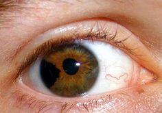 Iris Blunt force trauma resulting in a torn iris