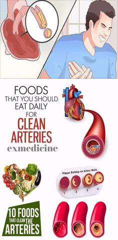 Want create site? Find Free WordPress Themes and plugins.Did you know that hypertension and high cholesterol are the two major contributing factors toward clogged arteries? The arteries are blood vessels that transport oxygen-dense blood from the heart to all organs in the body. A healthy artery is strong, elastic, and flexible. Progressive clogging of the…