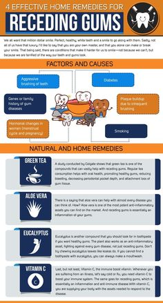 4 Effective Home Remedies for Receding Gums