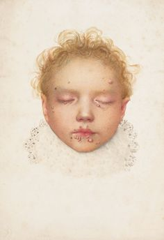 Amazon.fr - The Sick Rose: Disease and the Art of Medical Illustration - Richard Barnett - Livres